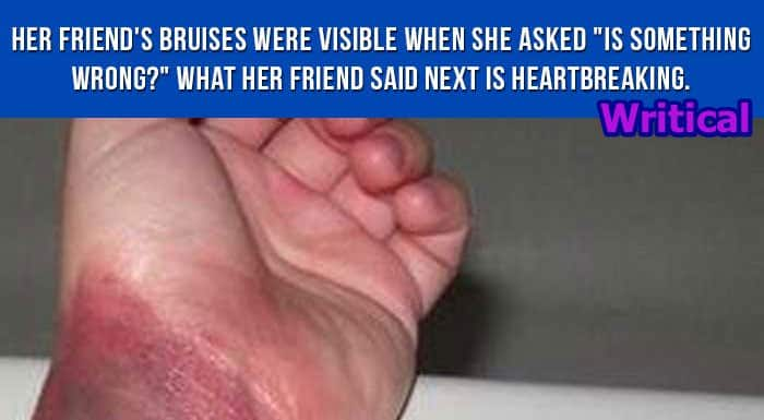 A Nurse narrates truth behind her bruised hand. Shocking