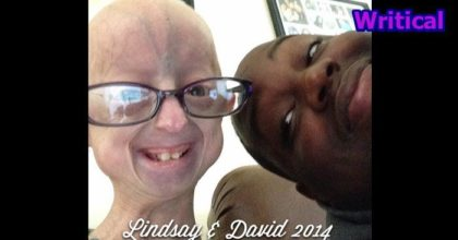 Progeria suffering kid