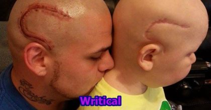 Dad tattoos his son's scar to boost his morale